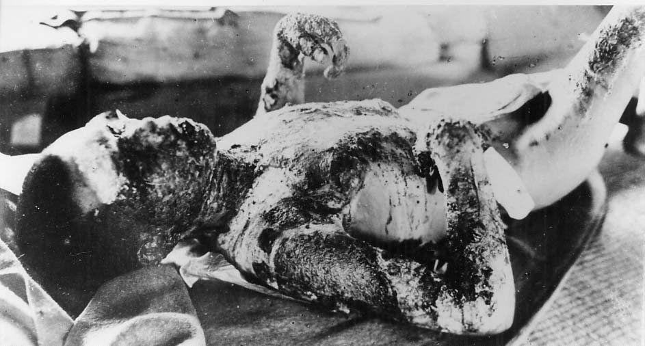 Hiroshima: 70 Jahre nukleares Inferno und die tödliche ...