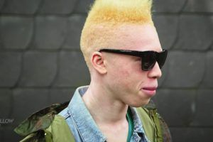 AlbiX: Albino-Model und Rapper