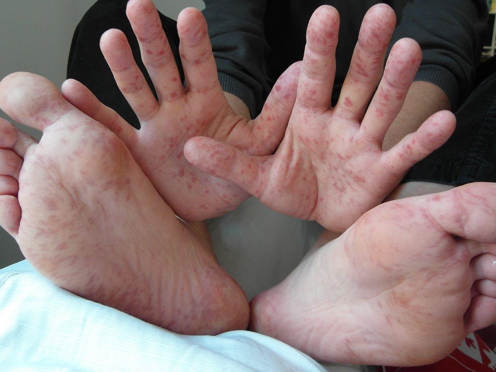 Die Hand Mund Fuß Krankheit: Fragen und Antworten zur Krankheit