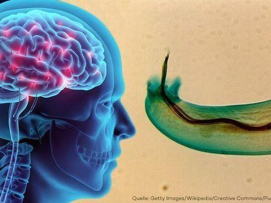 Auf Mallorca entdeckt - Parasiten-Wurm verursacht Hirnhautentzündung