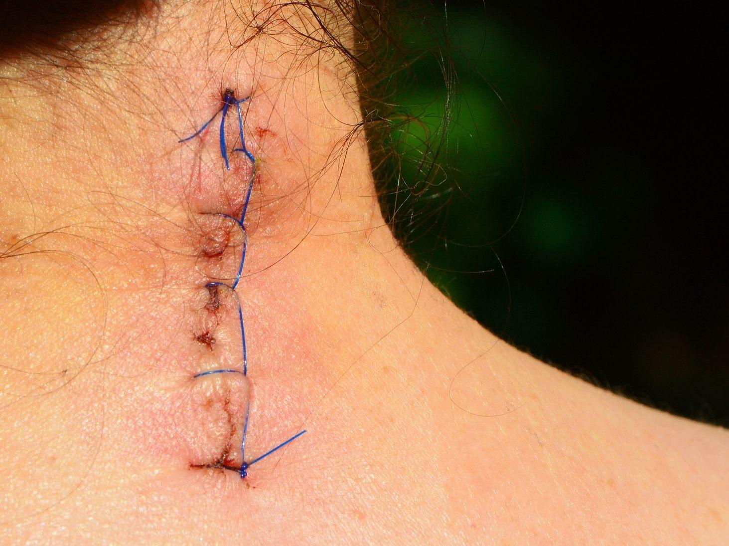 Wie-k-nnen-Narben-und-Problemnarben-behandelt-werden-